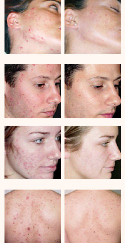 laser treatments tunisia